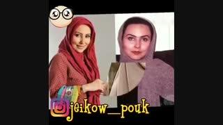 بازیگران ایرانی قبل و بعد از عمل