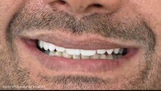 لمینیت سرامیکی دندان های فک بالا
