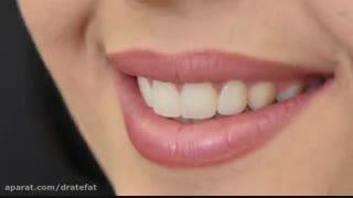 ونیر کامپوزیت طبیعی برای  4 دندان بالا