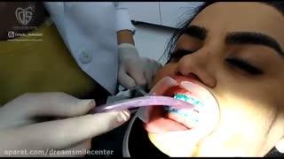 سفید کردن و بلیچینگ دندان با لیزرتراپی