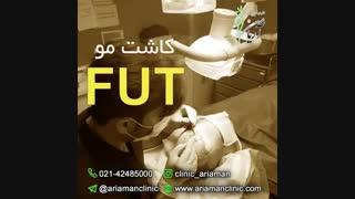 فیلم کاشت مو به روش FUT | کلینیک کاشت مو آریامن