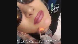 فیلم لیزر موهای زائد در کیلینک زیبایی آریامن 02188210135