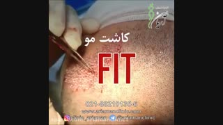 فیلم کاشت مو به روش FIT | کلینیک زیبای آریامن 02142485000