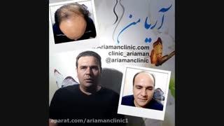رضایت از عمل کاشت مو در کلینیک کاشت مو و زیبایی آریامن  02141608