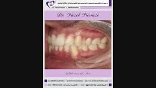 ارتودنسی ثابت همراه با کشیدن دندان | دکتر فیروزی