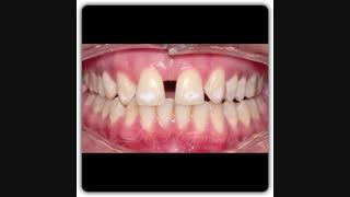 بسته شدن فضا دندان نیش | دکترسعید  قریشی