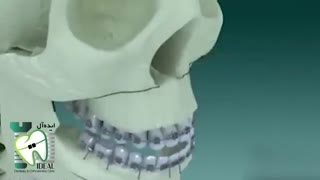 چند نکته درباره  جراحی فک و صورت   کلینیک دندانپزشکی ایده آل
