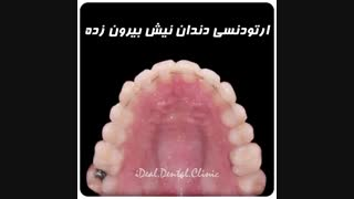 نمونه ارتودنسی دندان نیش بیرون زده | کلینیک دندانپزشکی ایده آل